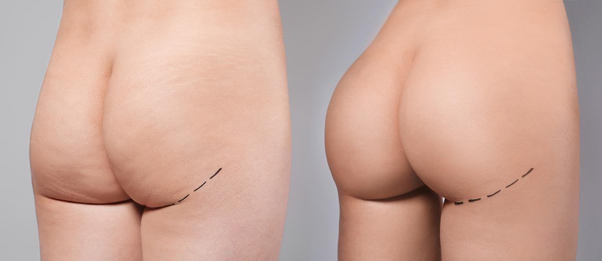 Implants Fessiers Medicalys