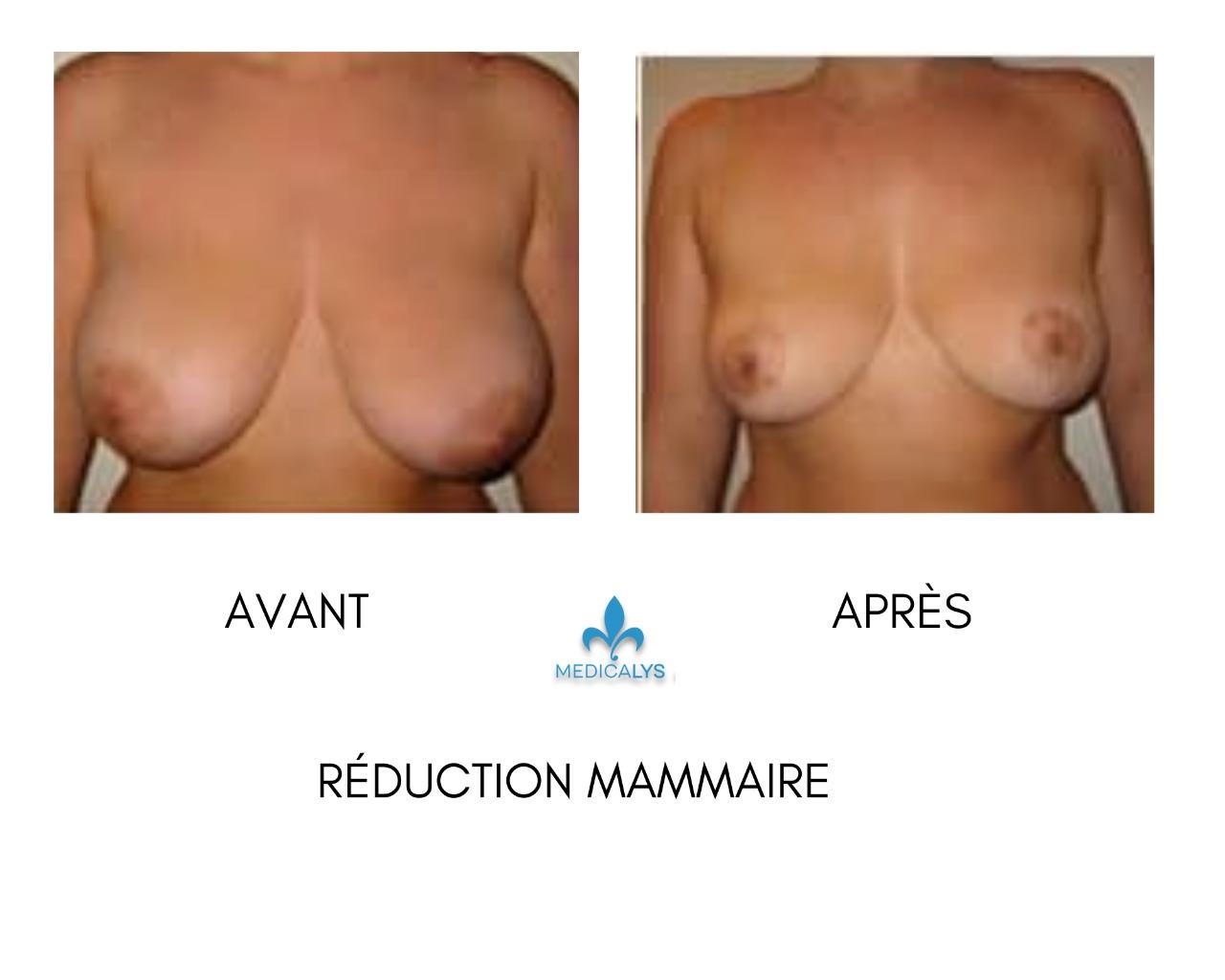 Réduction mammaire avant apres