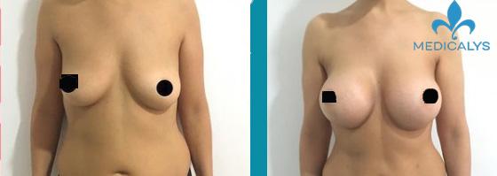 Augmentation mammaire avant après par prothèses mammaires + 375 cc