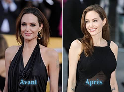 Angeline jolie-implants-mammaire-avant-après