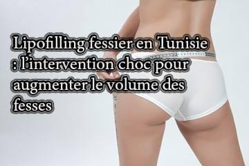 Lipofilling fessier en Tunisie : l'intervention choc pour augmenter le volume des fesses