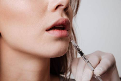 L'injection d'acide Hyaluronique pour les lèvres