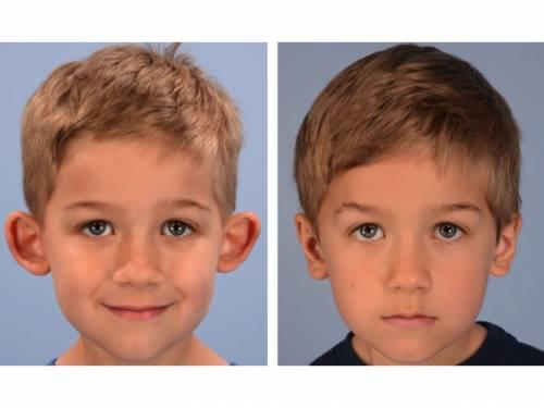 L'otoplastie : Tout savoir sur l'opération des oreilles