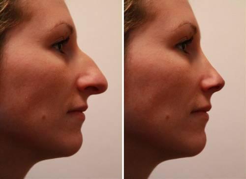 Rhinoplastie en Tunisie: chirurgie esthétique pour affiner son gros nez