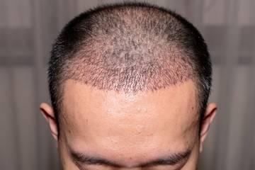 Implant capillaire en Tunisie : greffe de cheveux FUE