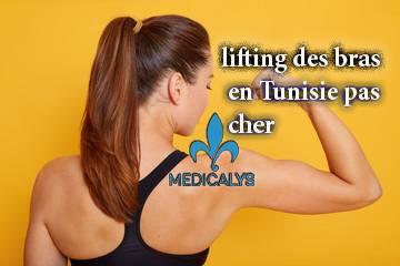 Lifting des bras en Tunisie : la solution ad'hoc pour arborer de jolis bras !