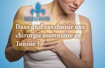 Dans quel cas choisir une chirurgie mammaire en Tunisie ?