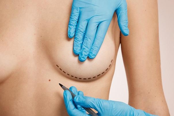 Chirurgia del seno in Tunisia: L'aumento mammario
