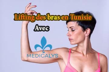 Le lifting bras : la chirurgie pour remodeler les bras